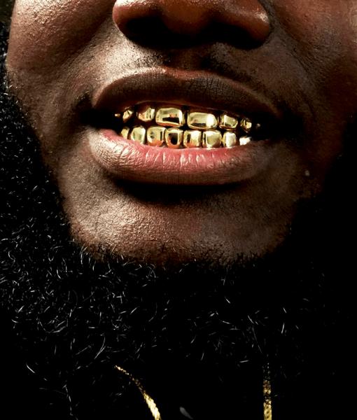 Gold Deep Cut Set [Permanent Look] - Buy Gold Teeth